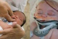 Mencegah Kerusakan Otak pada Bayi